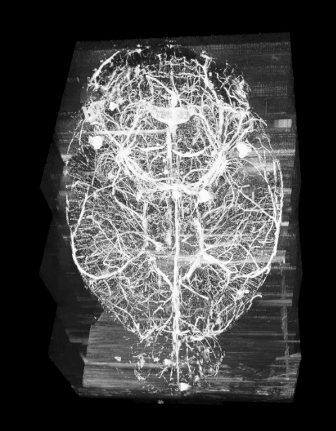 Mouse brain vascular network