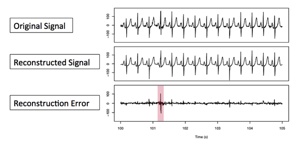 Anomaly detection in EKG data. The difference in the comparison between original signal being tested and the prototype reconstructed from the dictionary of shapes is the reconstruction error, the clue to anomalies in the original signal.
